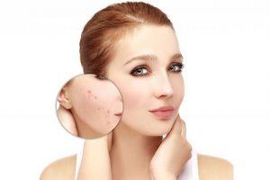 Revitol Eczema Cream funciona, composicion