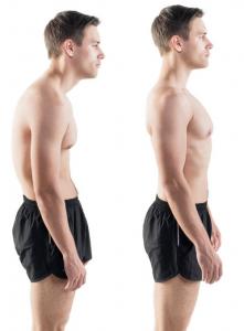 Posture Fixer Pro opiniones, foro, comentarios