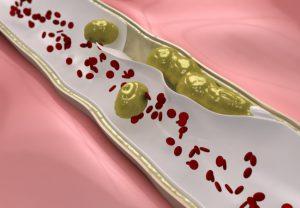 Como Cholestifin funciona? Para que sirve?