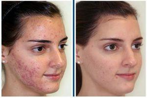Revitol Eczema Cream opiniones - foro, comentarios, efectos secundarios