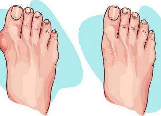 Para dar alivio a los pies, antes, o después